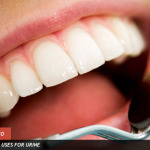 Dinţi fabricaţi din urină ?