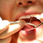 Oamenii de ştiinţă au găsit un medicament care regenerează dinţii