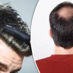 S-a dovedit, celule imune din piele direct cauzează creşterea părului