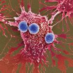 Prima terapie genică pentru tratarea leucemiei a fost aprobată în SUA