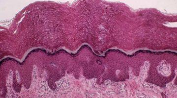 Interstiţiu - un nou organ descoperit