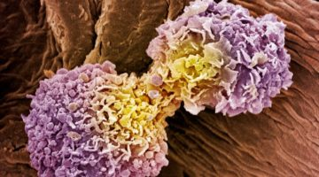 Metodă universală de detectare a cancerului