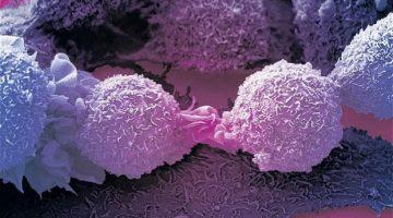Celulă imună ce ucide majoritatea tipurilor de cancer