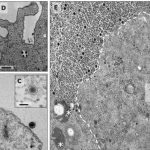 Yaravirus - virus cu gene necunoscute
